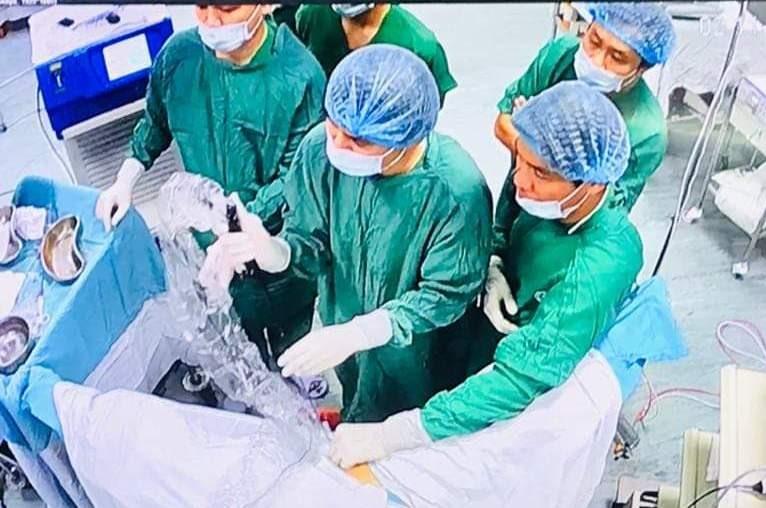 Phẫu thuật thị phạm tán sỏi thận theo phương pháp hiện đại. Ảnh: C.N