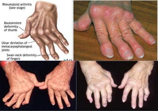 Các biến chứng do bệnh phong gây ra. Ảnh: N.Q