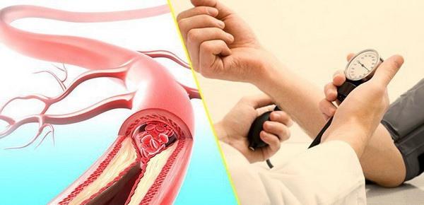 Rượu vang từ nho đỏ rất tốt cho người bị xơ vữa mạch máu có nguy cơ nhồi máu cơ tim và tăng huyết áp.