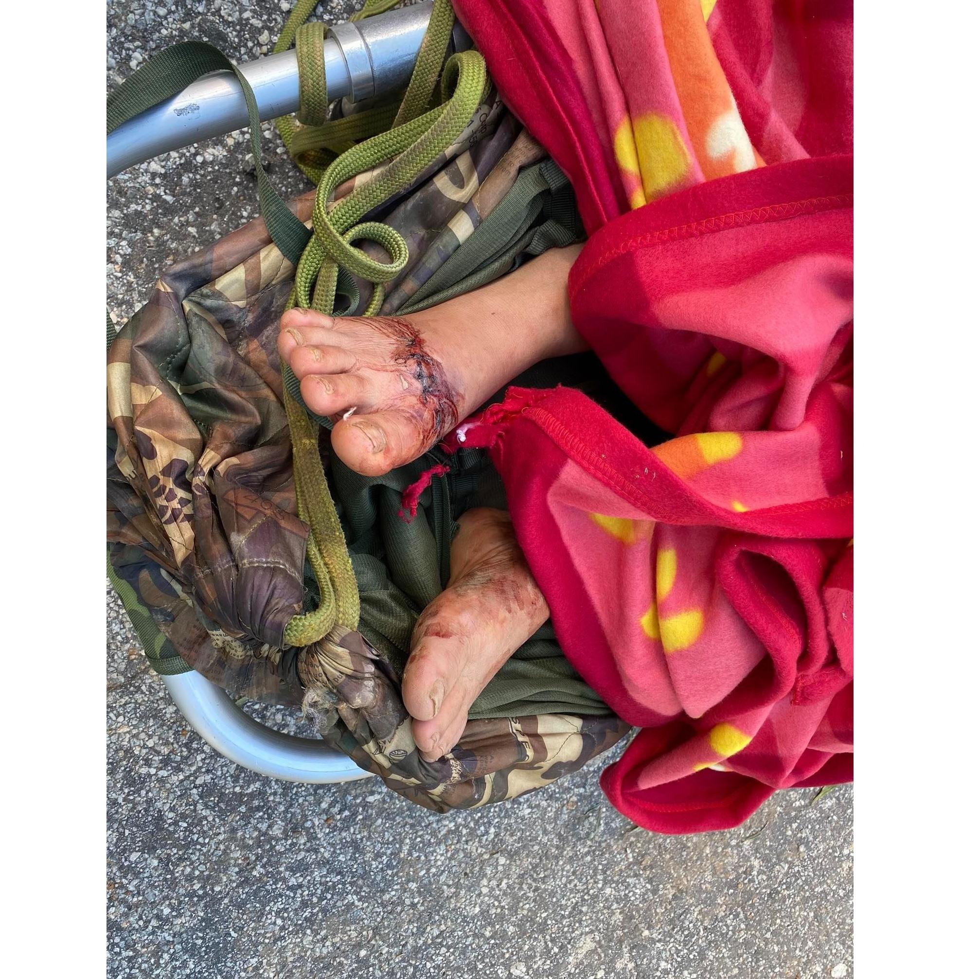 Một bệnh nhân bị thương ở bàn chân