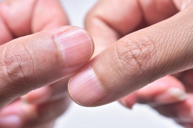 Móng tay có những rạch dài là dấu hiệu cảnh báo cơ thể quá thiếu chất lưu huỳnh.