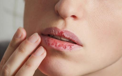 Cắn và bóc xé da môi có thể là biểu hiện của chứng rối loạn ám ảnh cưỡng chế. Ảnh: Shutterstock.