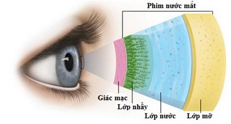 Khô mắt là 1 nguyên nhân gây ngứa mắt.