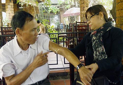 Chị Nguyễn Thị Thanh Hải xem lại vết thương năm xưa của anh Đỗ Minh Long.Ảnh: HỒNG VÂN