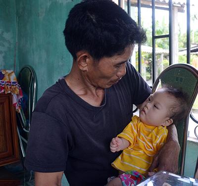 Anh Yên lo lắng không biết kiếm đâu ra tiền cho con gái được mổ tim.