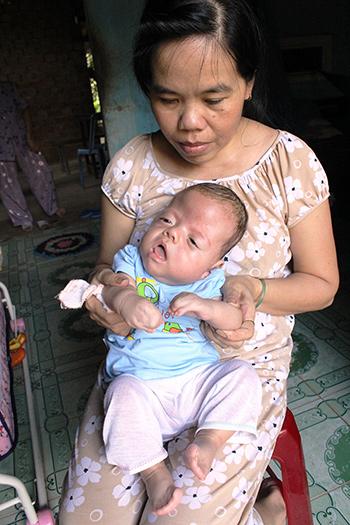Cháu Danh bị hội chứng Apert với hộp sọ phát triển bất thường và tay chân bị dính liền các ngón.