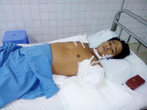 Anh Võ Công Dương hiện đã điều trị tại phòng 2, Khoa bỏng, Bệnh viện Đa khoa Đà Nẵng.