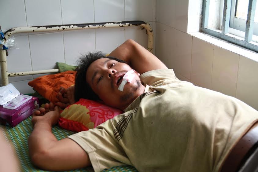 Anh Đặng Văn Thông đang được cấp cứu tại Khoa Răng  - hàm - mặt, Bệnh viện Đa khoa Quảng Nam.