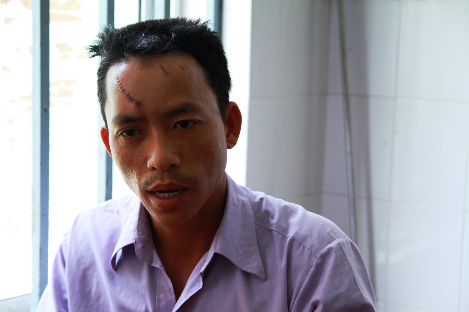 Ông Huỳnh Xuân Thạch đang được điều trị tại bệnh viện đa khoa Quảng Nam với hai vết khâu trên trán