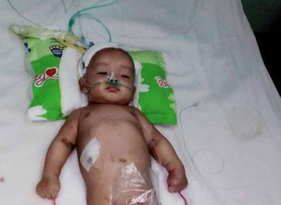 Cháu Khoa rất cần sự giúp đỡ để có thể sớm phẫu thuật.