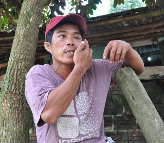 Anh Trần Văn Nhật chỉ một vết thương trên mắt trái do bị đánh. Ảnh: H.G