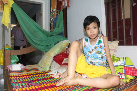 Mang trọng bệnh khối u trong bụng, bé Hứa Hoàng Lâm từ nhiều tháng nay phải ngồi liên tục, kể cả khi ngủ. Ảnh: T.N