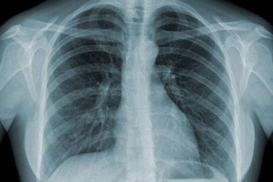 Tia x quang có nguy cơ gây ung thư ở người