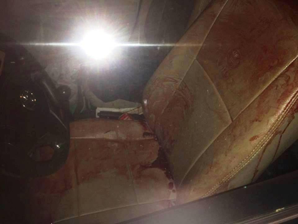 Băng ghế của tài xế xe taxi dính nhiều máu. Ảnh: CTV