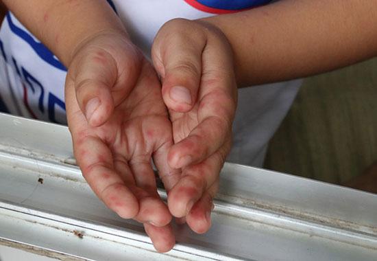 Các mụn nước đặc trưng của bệnh tay chân miệng nổi trên lòng bàn tay trẻ