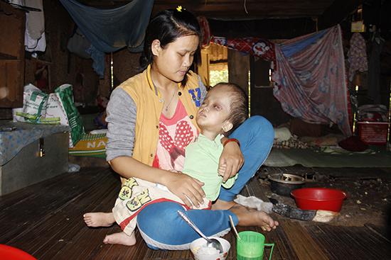 Chị Hồ Thị Đinh bên đứa con trai bị bệnh não úng thủy. Ảnh: THANH THẮNG
