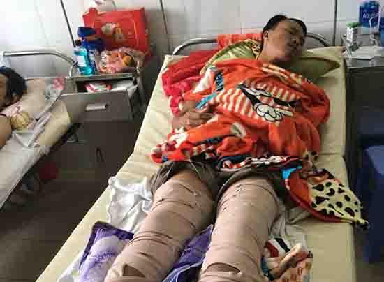 Anh Tư đang được điều trị tại Bệnh viện Đa khoa Đà Nẵng. Ảnh: N.D