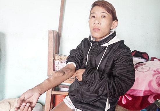 Chị Nguyễn Thị Cẩm Nhung với cánh tay bị chai vên, nổi thành nhiều khối u to. Ảnh: NHƯ TRANG