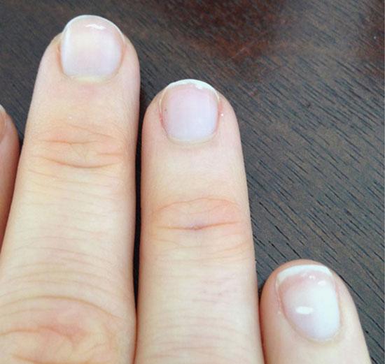 Đốm trắng ở móng lan rộng ra sẽ là dấu hiệu của bệnh nặng.
