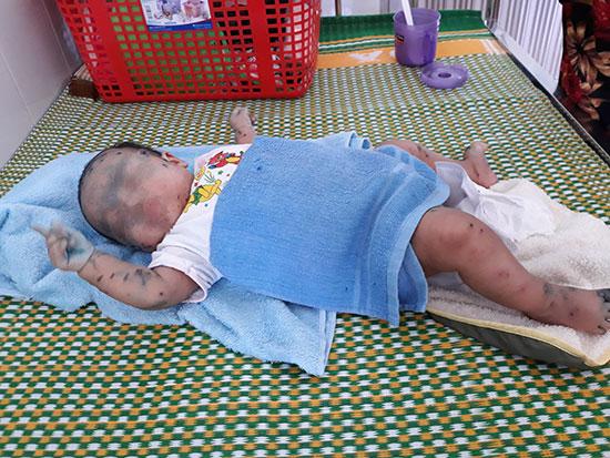 Một trường hợp mắc bệnh tay chân miệng vừa nhập Bệnh viện Nhi Quảng Nam. Ảnh C.N