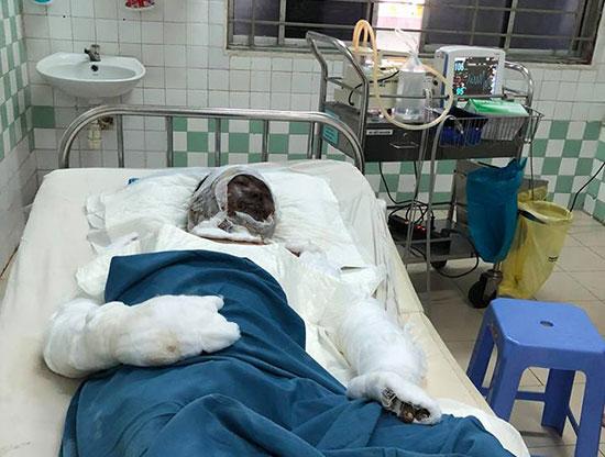 Nguyễn Thành Long đang điều trị tại bệnh viện.  Ảnh: Đ.Q